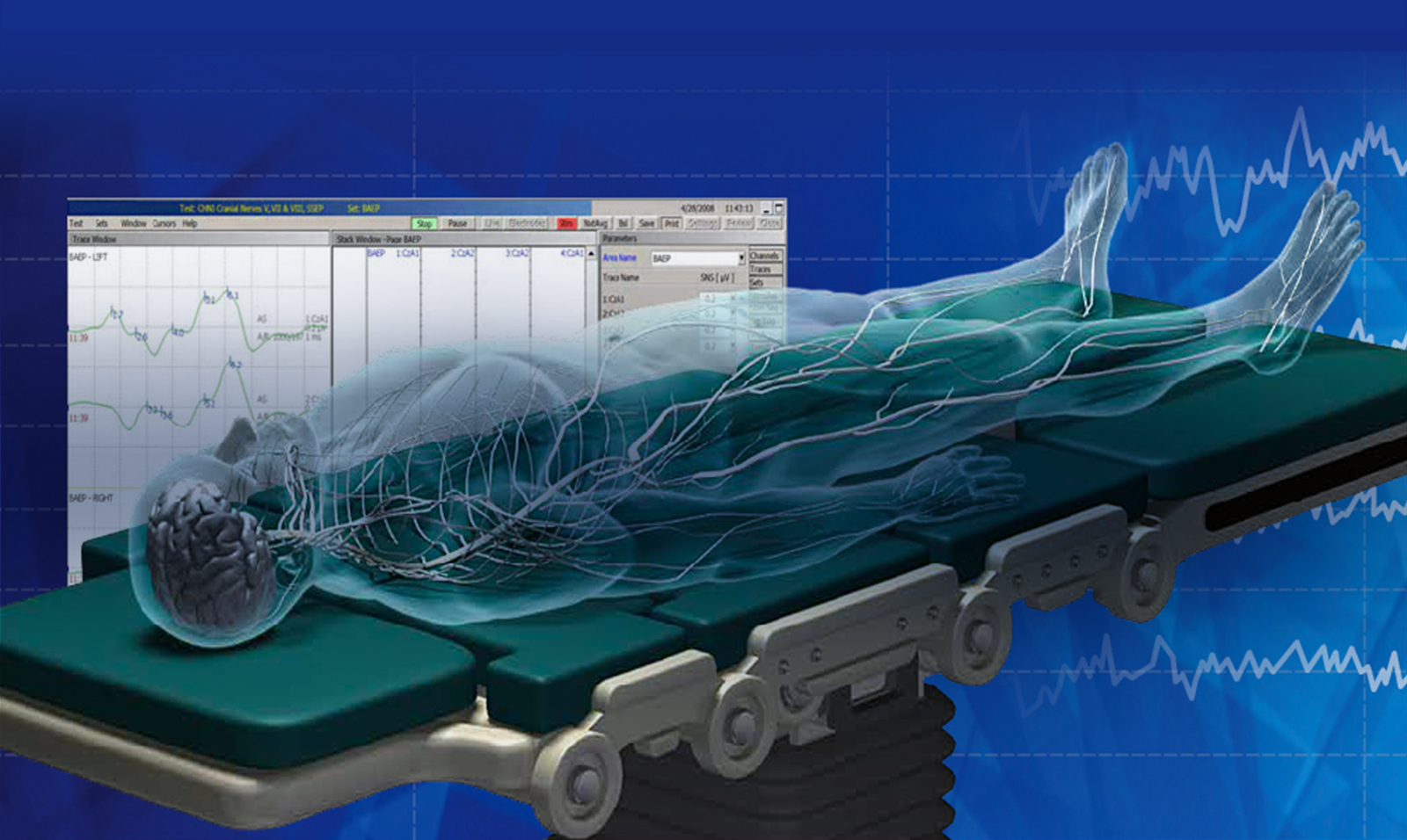 ionm market in the us Global intraoperative neuromonitoring market 2017-2021: ionm market in the us 2016 2017 global intraoperative neuromonitoring market forecast 2017-2025.